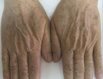 Altersflecken Behandlung mit IPL Haut Manufaktur Henstedt-Ulzburg Kosmetik Kosmetikstudio nacher Ergebnisse Erfahrungen