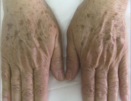 Altersflecken Behandlung mit IPL Haut Manufaktur Henstedt-Ulzburg vorher