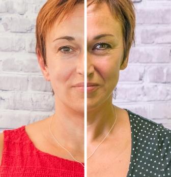 Behandlung-Falten-Ergebnis erfahrungen gesichtsbehandlung hautpflege haut manufaktur kosmetik